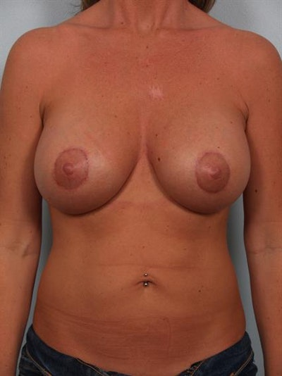 Breast Lift with Implants Gallery - Patient 1612638 - Image 2