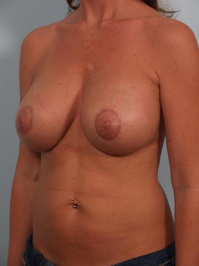 Breast Lift with Implants Gallery - Patient 1612638 - Image 4