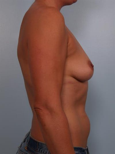 Breast Lift with Implants Gallery - Patient 1612639 - Image 1