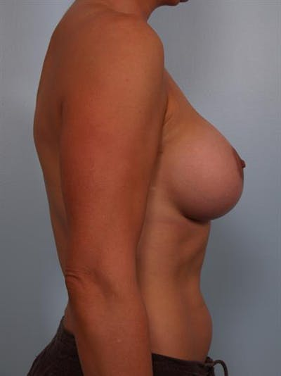 Breast Lift with Implants Gallery - Patient 1612639 - Image 2