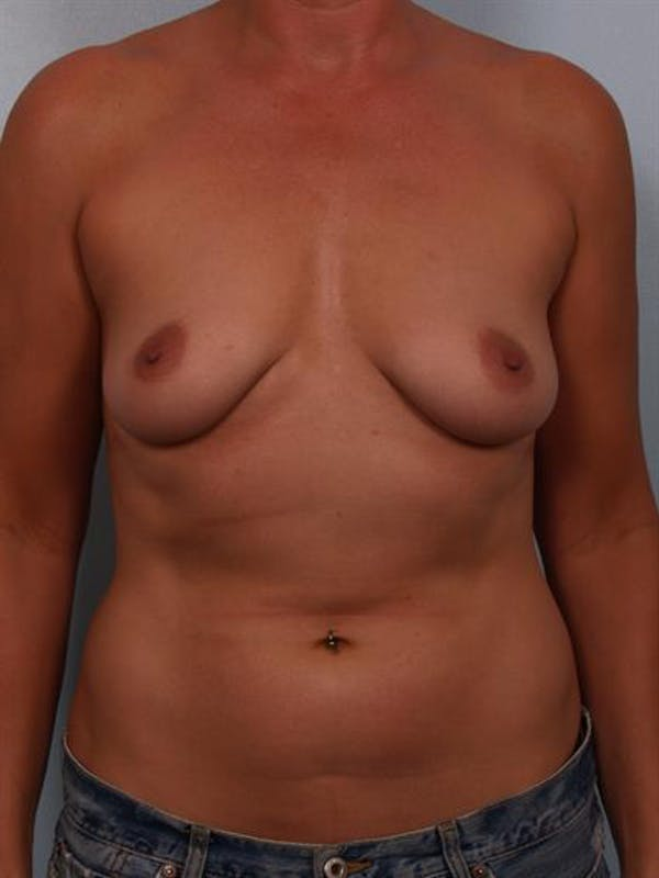 Breast Lift with Implants Gallery - Patient 1612639 - Image 3