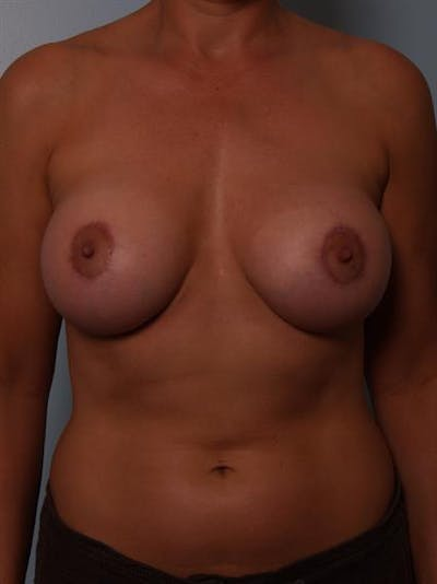 Breast Lift with Implants Gallery - Patient 1612639 - Image 4