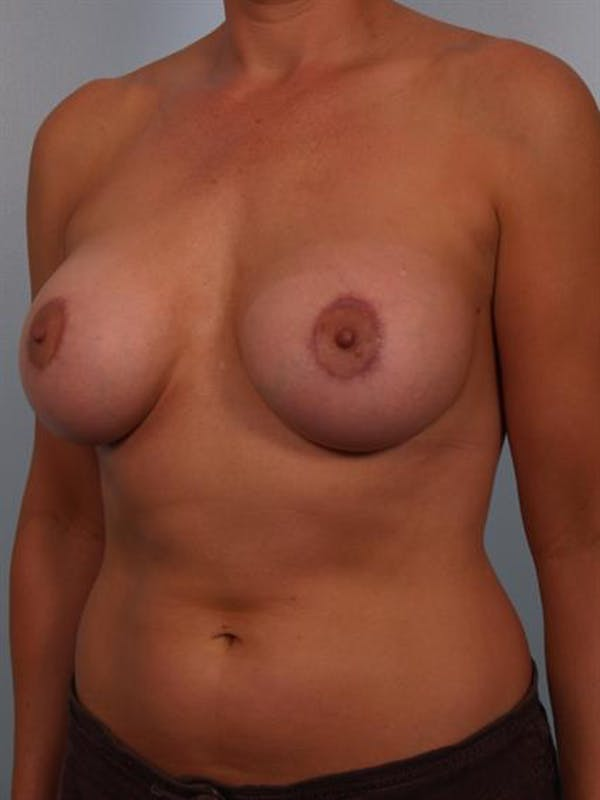 Breast Lift with Implants Gallery - Patient 1612639 - Image 6