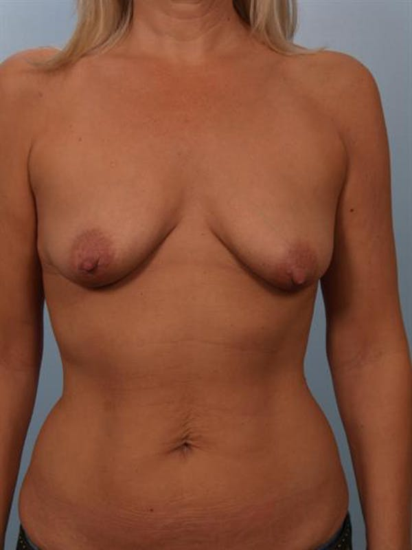 Breast Lift with Implants Gallery - Patient 1612640 - Image 1