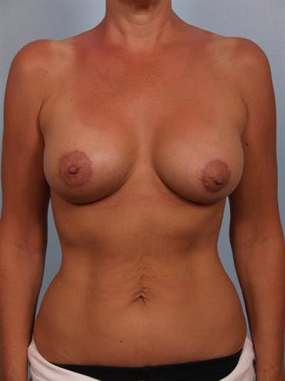 Breast Lift with Implants Gallery - Patient 1612640 - Image 2