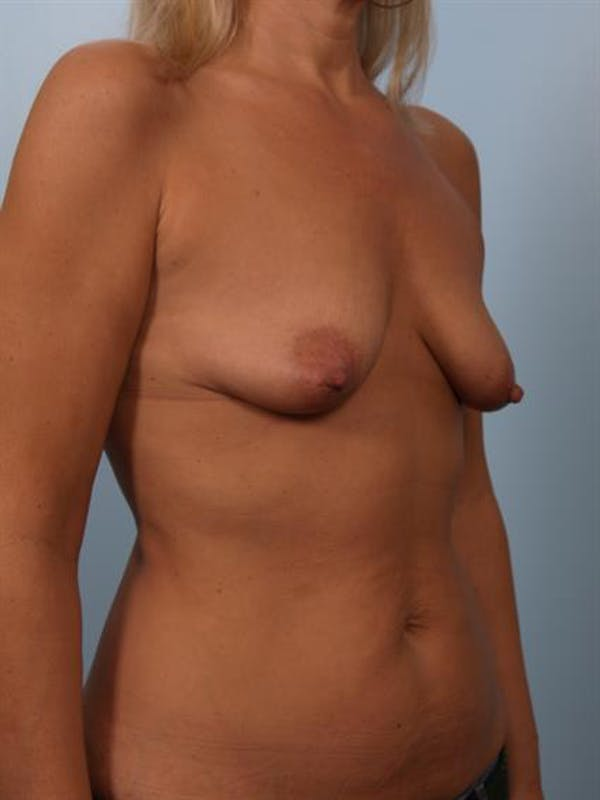 Breast Lift with Implants Gallery - Patient 1612640 - Image 3