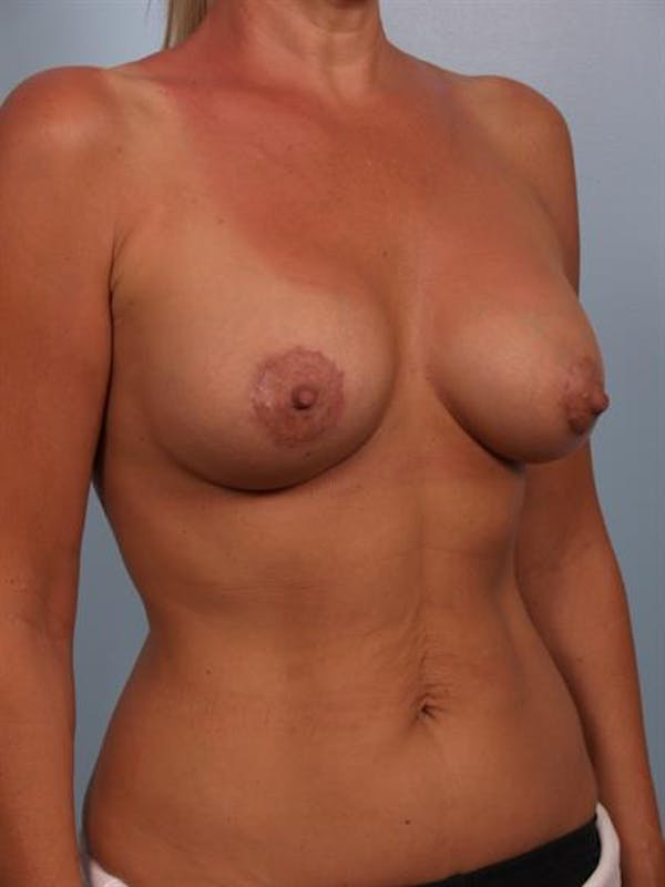 Breast Lift with Implants Gallery - Patient 1612640 - Image 4