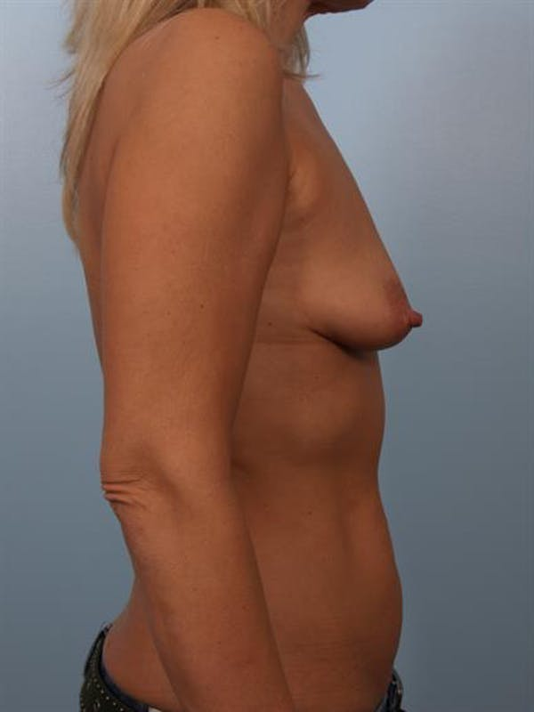 Breast Lift with Implants Gallery - Patient 1612640 - Image 5
