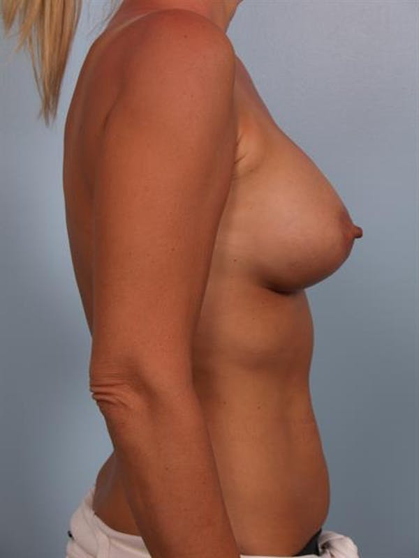 Breast Lift with Implants Gallery - Patient 1612640 - Image 6