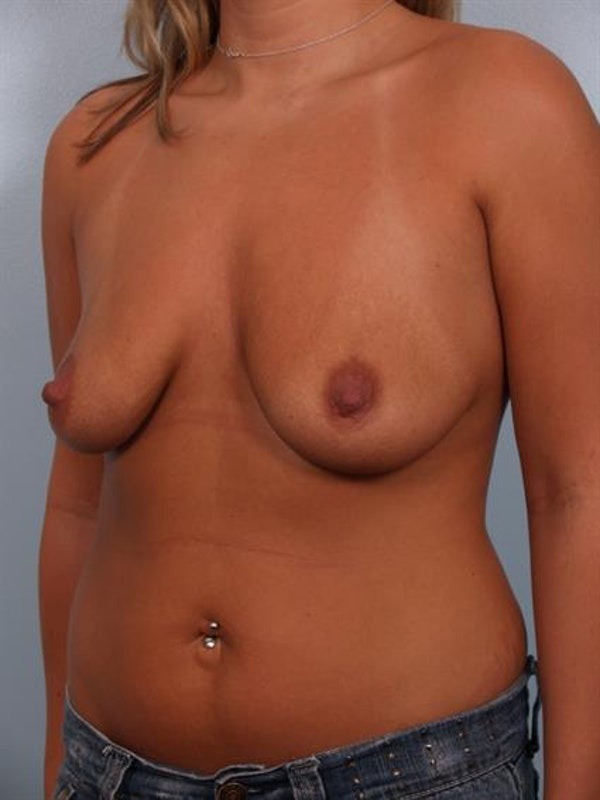 Breast Lift with Implants Gallery - Patient 1612641 - Image 1