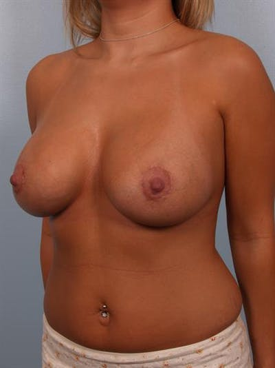Breast Lift with Implants Gallery - Patient 1612641 - Image 2