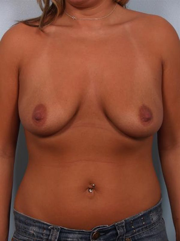 Breast Lift with Implants Gallery - Patient 1612641 - Image 3