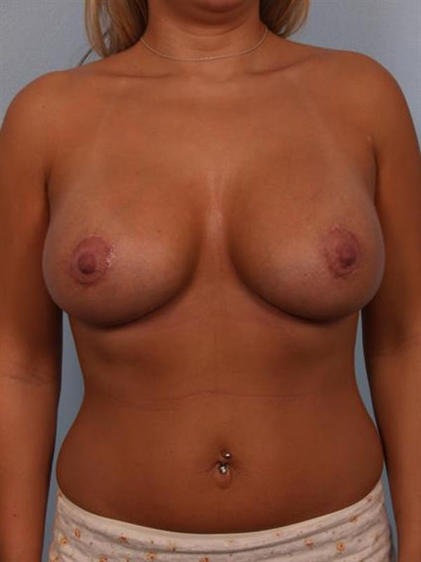 Breast Lift with Implants Gallery - Patient 1612641 - Image 4