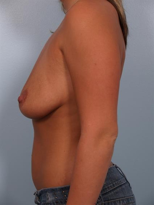 Breast Lift with Implants Gallery - Patient 1612641 - Image 5