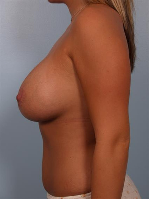Breast Lift with Implants Gallery - Patient 1612641 - Image 6