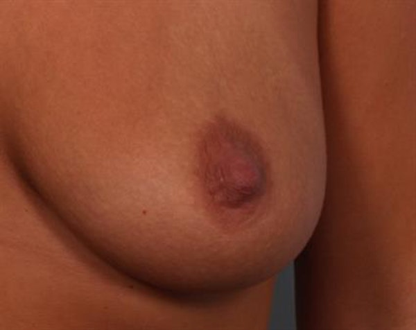 Breast Lift with Implants Gallery - Patient 1612641 - Image 7