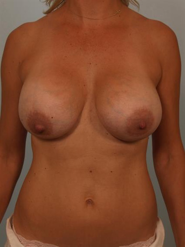 Breast Lift with Implants Gallery - Patient 1612642 - Image 1