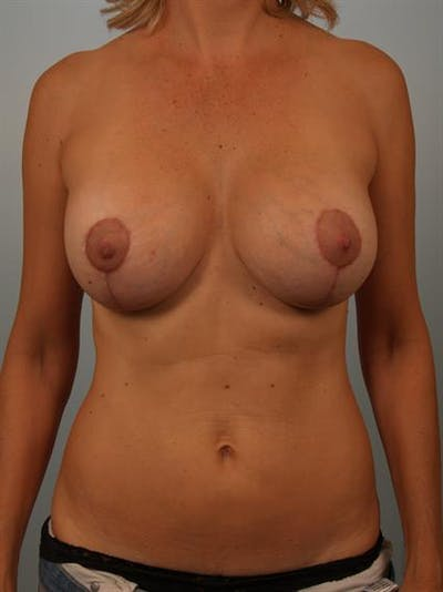 Breast Lift with Implants Gallery - Patient 1612642 - Image 2