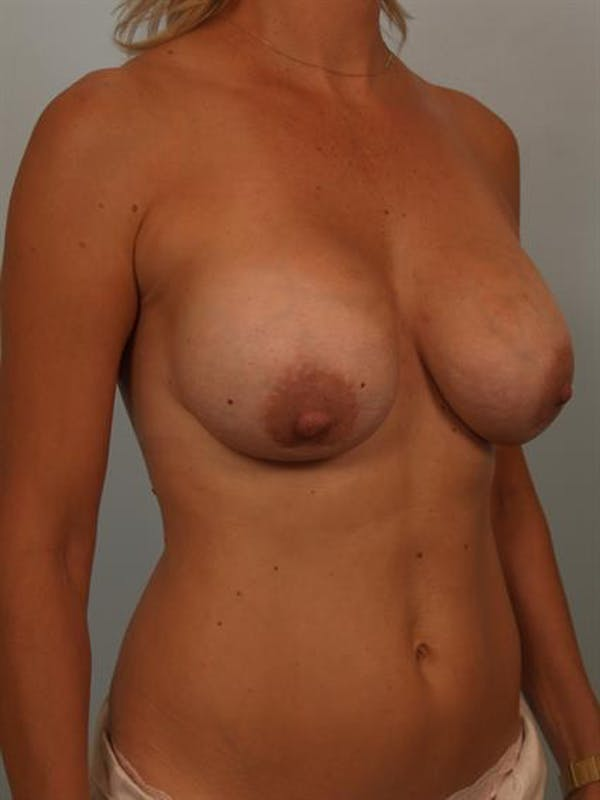Breast Lift with Implants Gallery - Patient 1612642 - Image 3