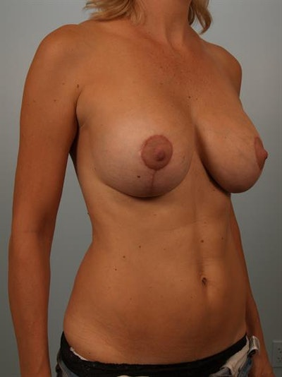 Breast Lift with Implants Gallery - Patient 1612642 - Image 4