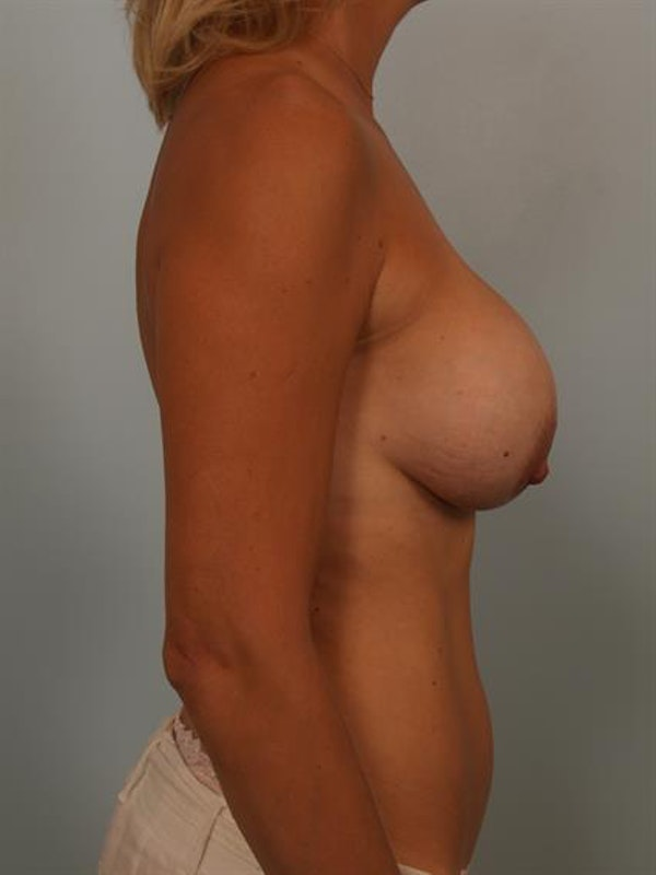 Breast Lift with Implants Gallery - Patient 1612642 - Image 5