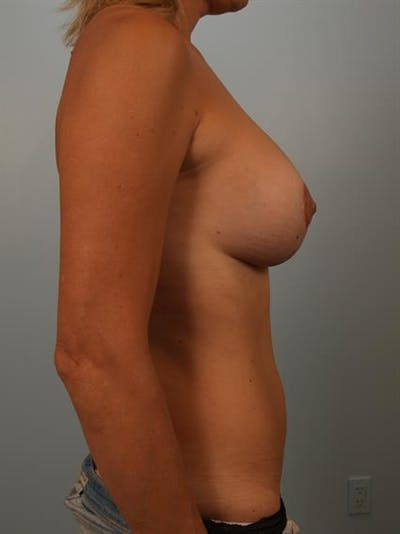 Breast Lift with Implants Gallery - Patient 1612642 - Image 6