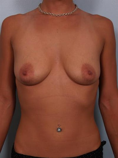 Breast Lift with Implants Gallery - Patient 1612643 - Image 1