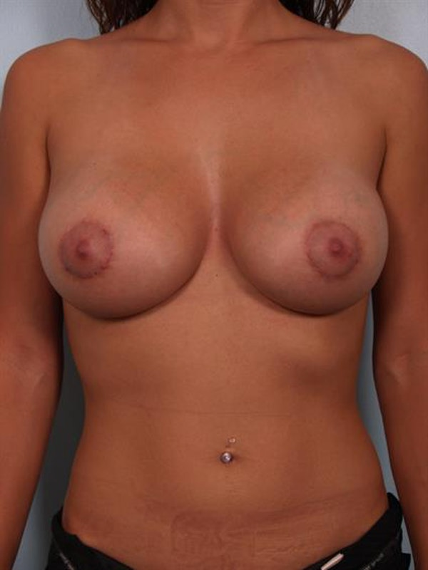 Breast Lift with Implants Gallery - Patient 1612643 - Image 2