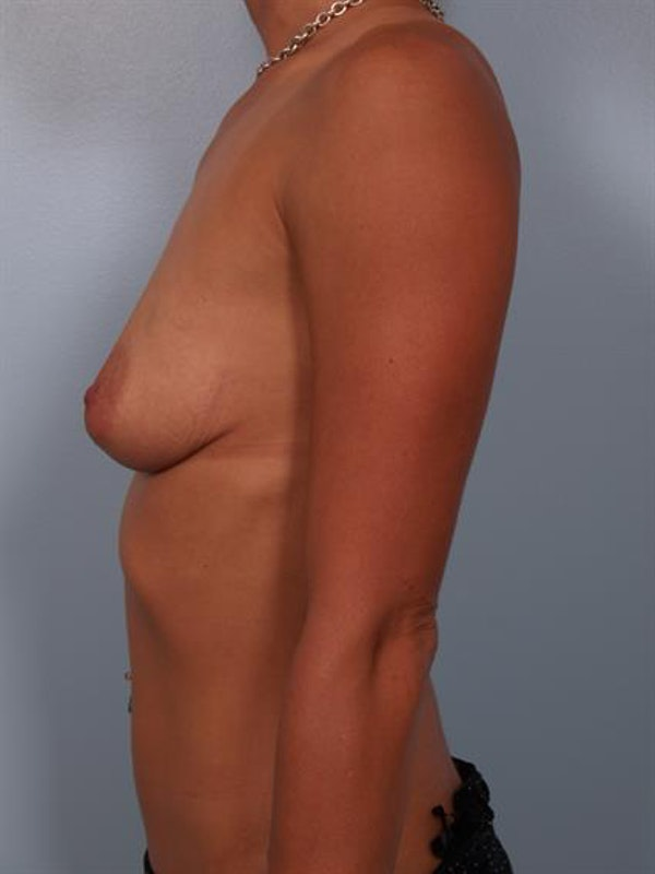 Breast Lift with Implants Gallery - Patient 1612643 - Image 3