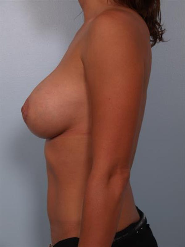 Breast Lift with Implants Gallery - Patient 1612643 - Image 4