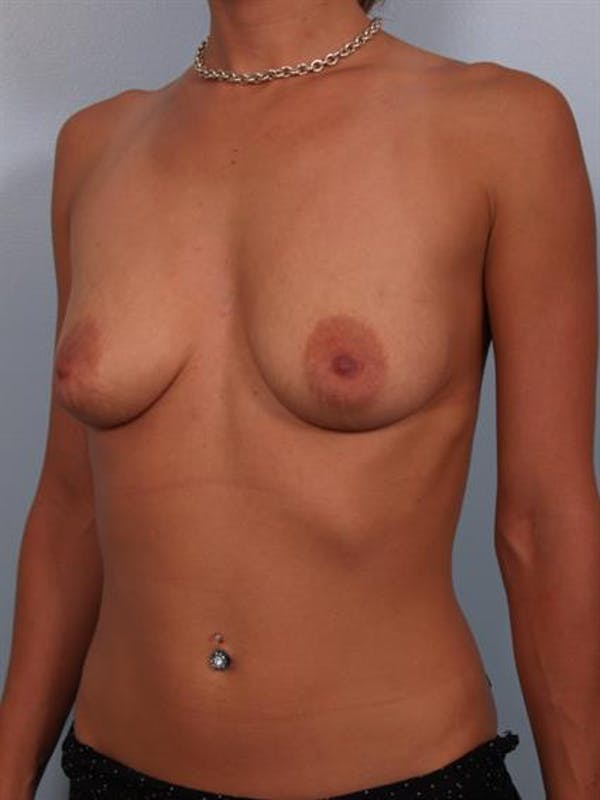 Breast Lift with Implants Gallery - Patient 1612643 - Image 5