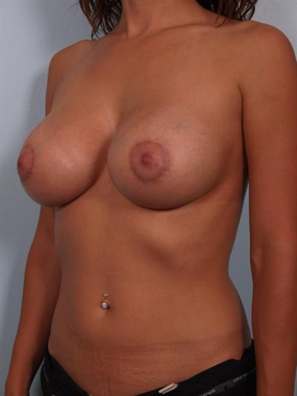 Breast Lift with Implants Gallery - Patient 1612643 - Image 6