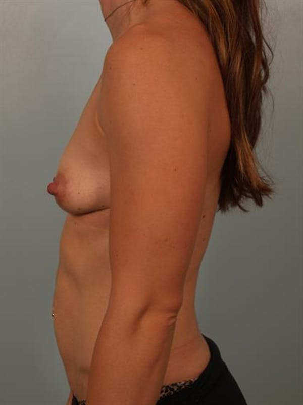 Breast Lift with Implants Gallery - Patient 1612644 - Image 1