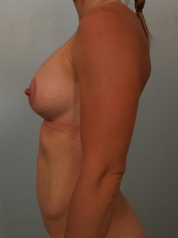 Breast Lift with Implants Gallery - Patient 1612644 - Image 2