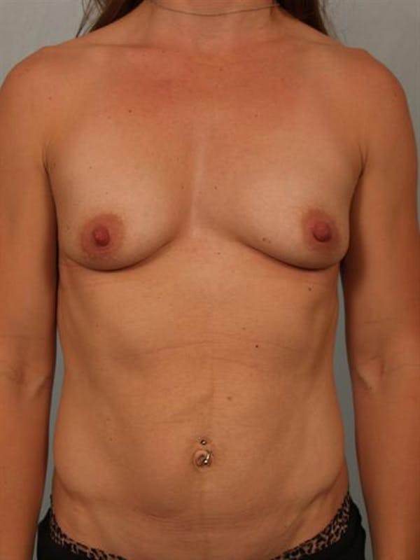 Breast Lift with Implants Gallery - Patient 1612644 - Image 3