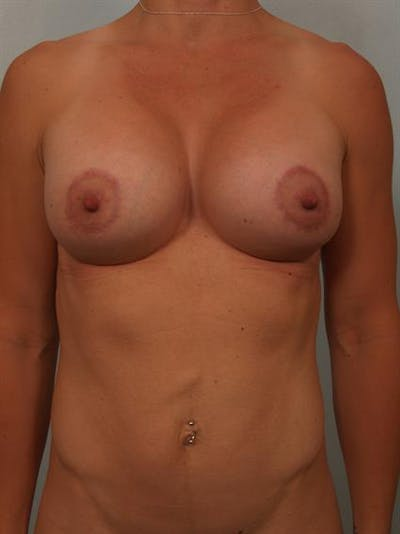 Breast Lift with Implants Gallery - Patient 1612644 - Image 4