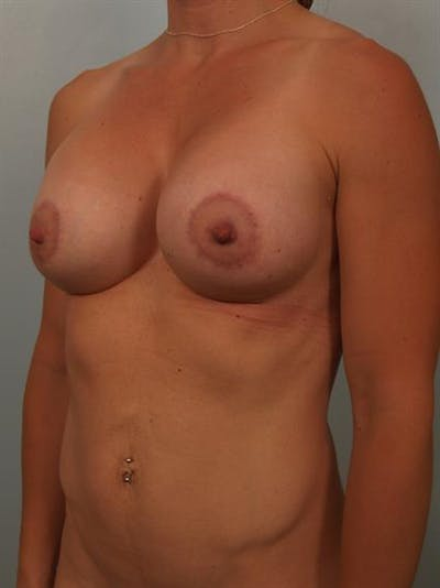 Breast Lift with Implants Gallery - Patient 1612644 - Image 6