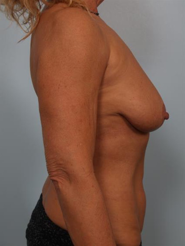 Breast Lift with Implants Gallery - Patient 1612645 - Image 1