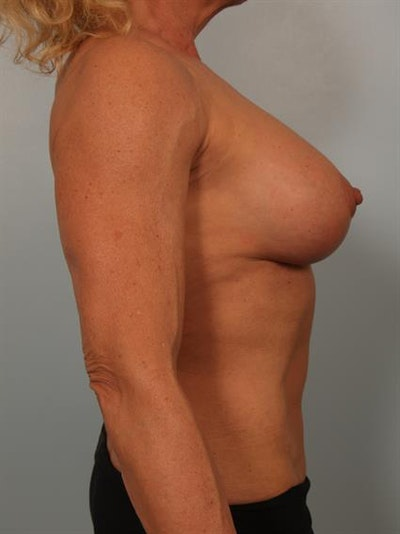 Breast Lift with Implants Gallery - Patient 1612645 - Image 2