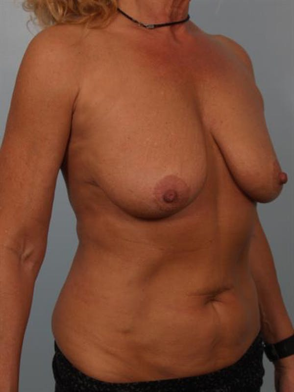 Breast Lift with Implants Gallery - Patient 1612645 - Image 3
