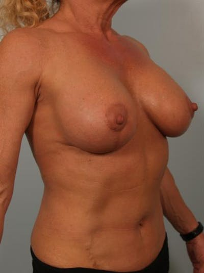 Breast Lift with Implants Gallery - Patient 1612645 - Image 4