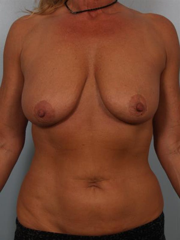 Breast Lift with Implants Gallery - Patient 1612645 - Image 5