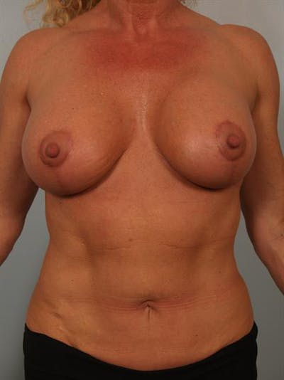 Breast Lift with Implants Gallery - Patient 1612645 - Image 6