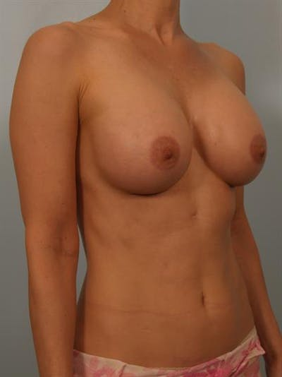 Breast Lift with Implants Gallery - Patient 1612646 - Image 2