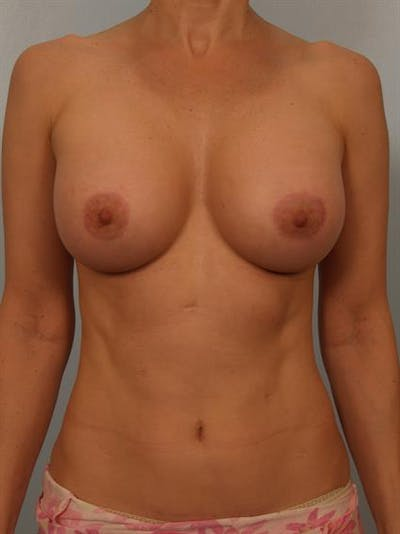 Breast Lift with Implants Gallery - Patient 1612646 - Image 4
