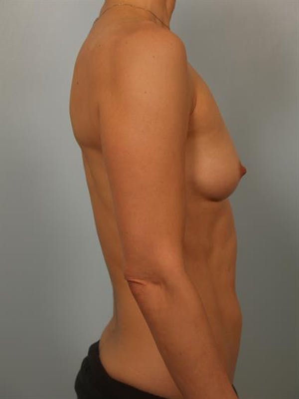 Breast Lift with Implants Gallery - Patient 1612646 - Image 5
