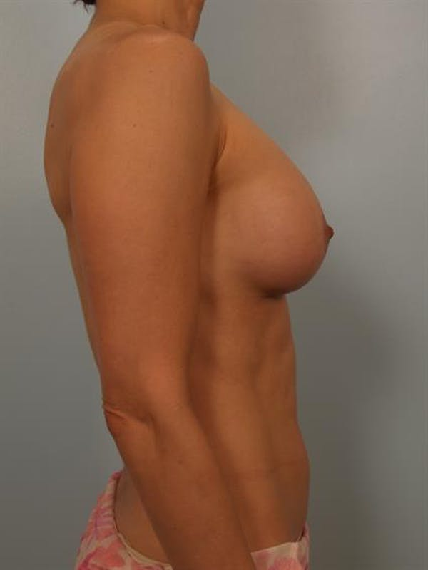 Breast Lift with Implants Gallery - Patient 1612646 - Image 6