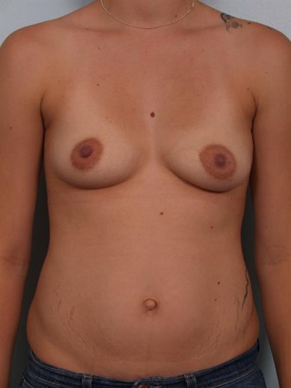 Breast Lift with Implants Gallery - Patient 1612647 - Image 1