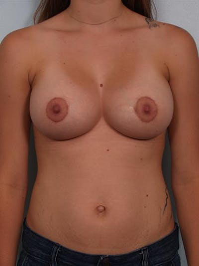 Breast Lift with Implants Gallery - Patient 1612647 - Image 2
