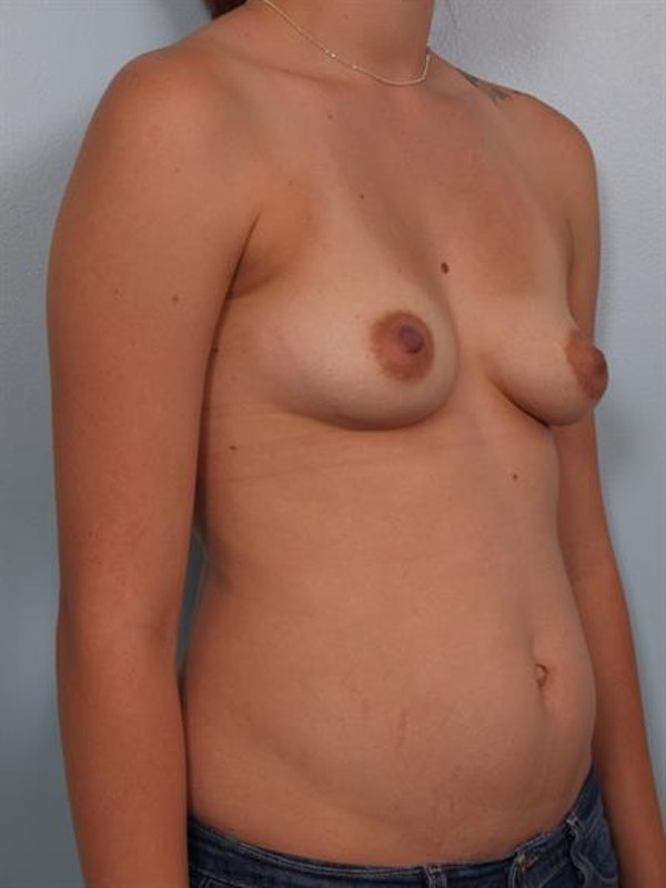 Breast Lift with Implants Gallery - Patient 1612647 - Image 3